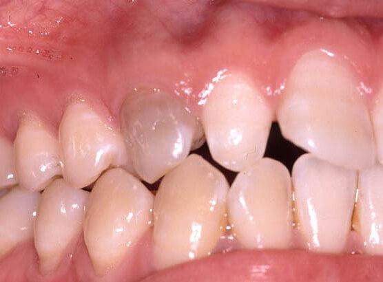 歯の黒ずみ除去「ウォーキングブリーチ」
