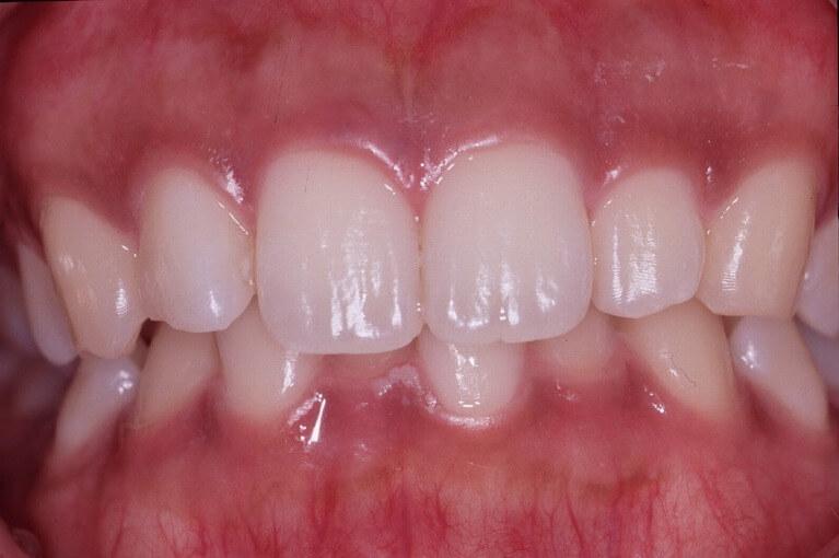 健康的なピンク色へ「歯ぐきのメラニン除去」
