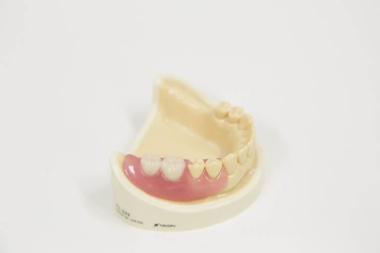 目立たない入れ歯